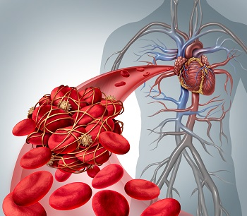 Illustration of blood clot